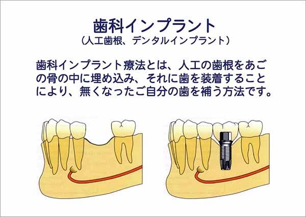 歯科インプラント(人工歯根)治療とは